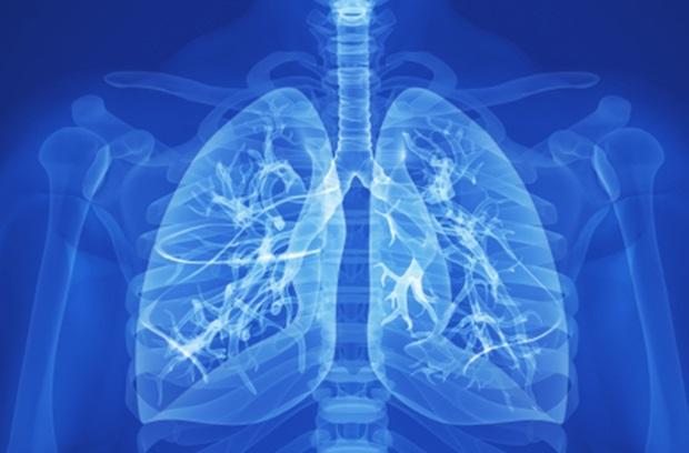布加替尼是ALK基因变异的肺癌病人的又一剂靶向药物,布加替尼印度的版功效准确