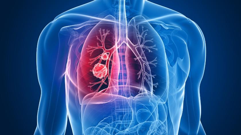 创新性观察性研究:布加替尼与初期心肺功能更改的关联