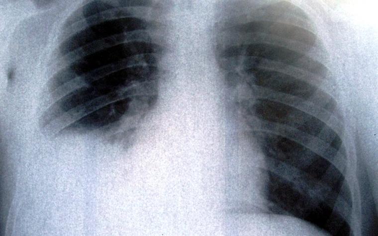 这类基因突变的肺癌能够 成为了真实的慢性疾病,色瑞替尼片裸钻基因突变,药品归纳